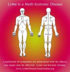 Lyme Disease Symptoms Pain Locations