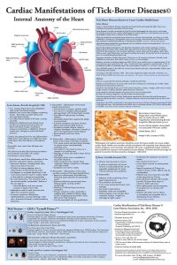 LDA Heart Poster Small JPEG Not for Print sm