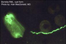 Lyme disease bacterium