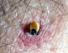 Imbedded Tick