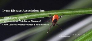 what-is-Lyme-slideshow-images-px-4