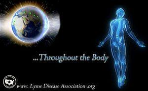 Lyme Disesse Symptoms